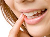 初期虫歯等のチェック