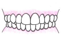 良い歯並び・正しい噛み合わせの条件