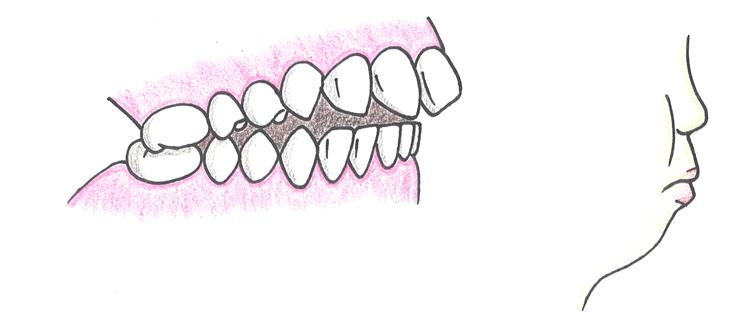 上顎前突(じょうがくぜんとつ)(出っ歯)