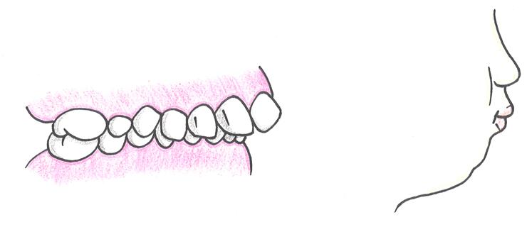 骨格性上顎前突(こっかくせいじょうがくぜんとつ:出っ歯)