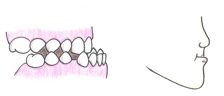 骨格性下顎前突(こっかくせいかがくぜんとつ:受け口)
