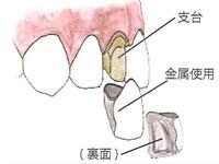 前歯の被せ物保険