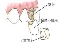 前歯の被せ物自費