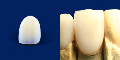 前歯の被せ物