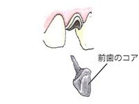 前歯のコア