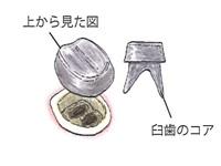 奥歯のコア