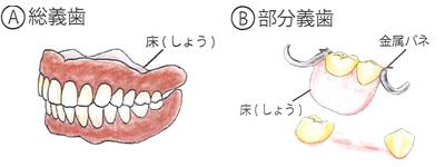 いろいろな「入れ歯(義歯)」