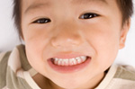 小児歯科 子供の歯の治療