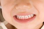 子供の歯の治療